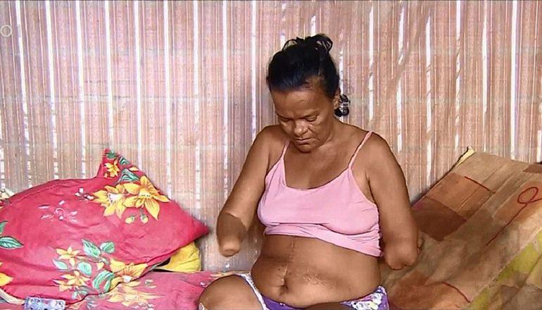 Mulher sem mãos tem pedido de benefício negado pelo INSS por não poder assinar papel