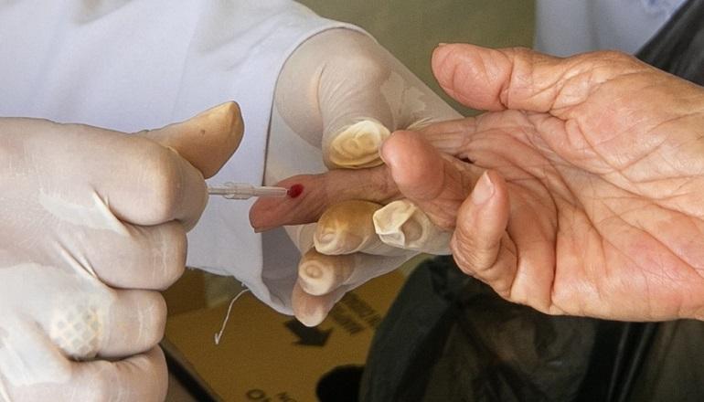 CTA realiza estratégia para disponibilizar testagem de hepatites virais nos bairros